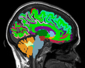 Brain imaging. Image provided by Dr. Sutton.